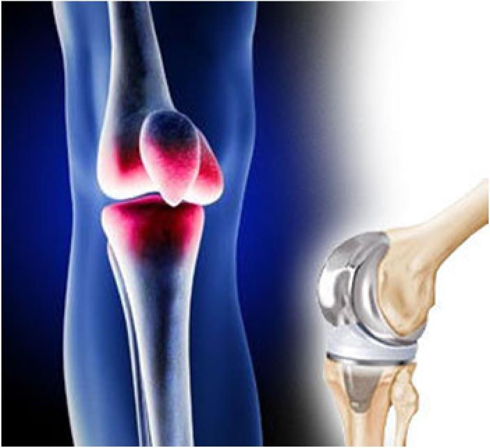 TKR (Total Knee Replacement)
